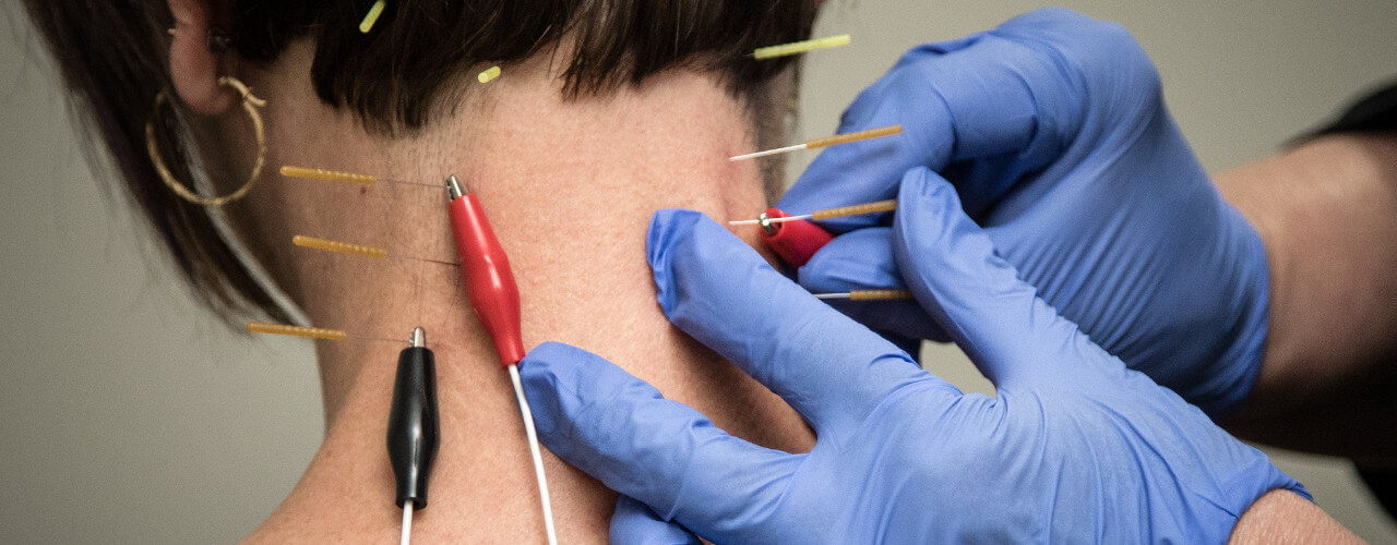 Dry Needling Bellaire, OH